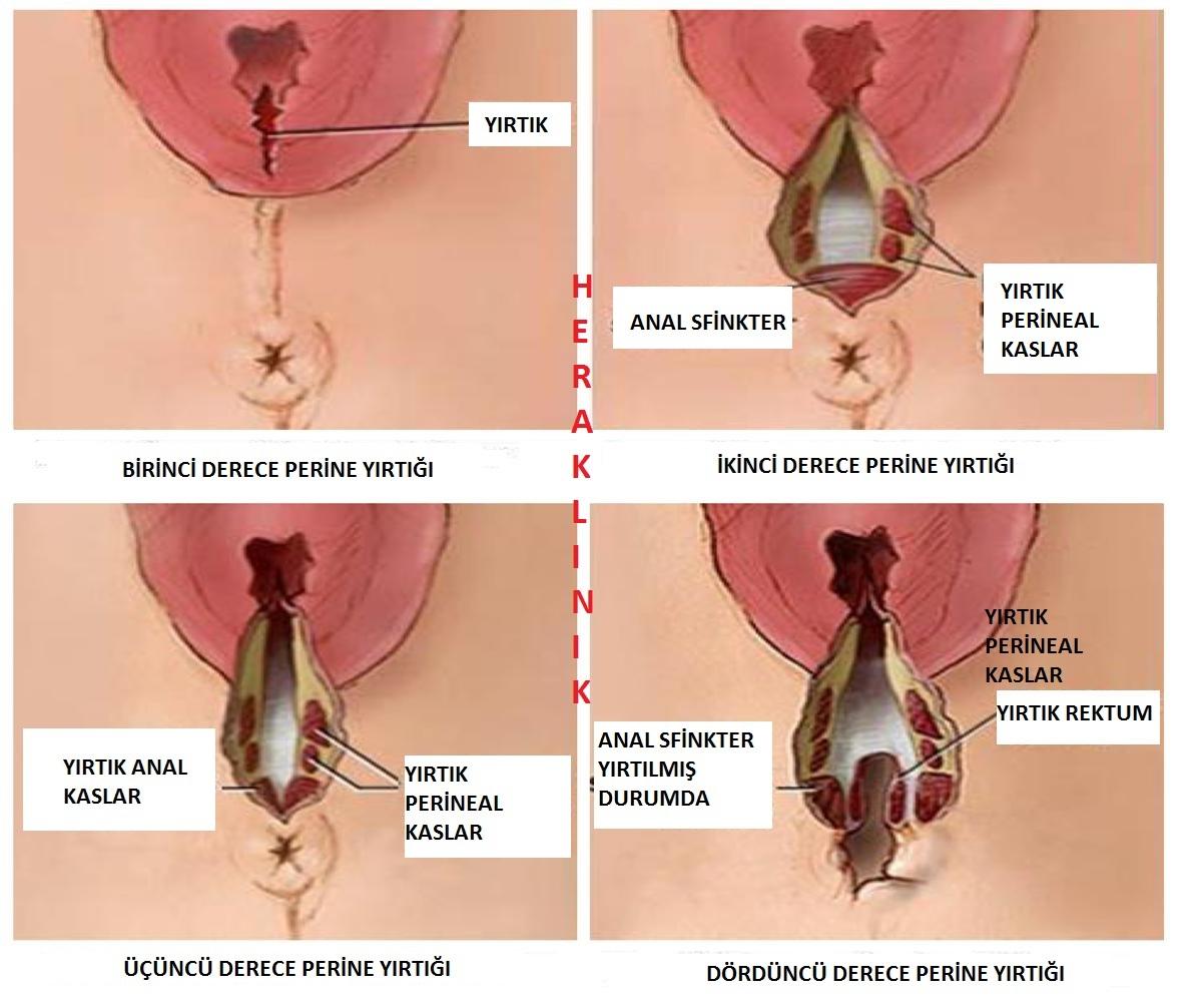 Vajina enfeksiyonları Vajina hastalıkları 68