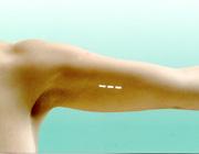İmplanon uygulaması, cilt altı implant