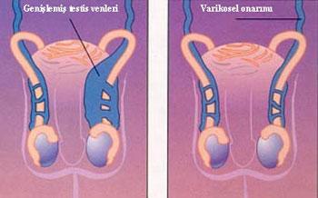 İnfertilite erkek faktörü, cerrahi tedaviler, varikosel