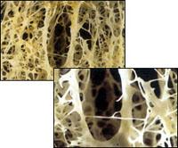 Osteoporoz, kemik erimesi, kemik kırılması, osteoporos