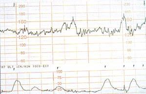 Non-stress test, bebeğin kalp atımlarının grafik kağıda aktarılması