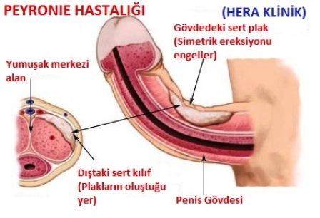 Penis kanseri: Etiyoloji, klinik ve tedavisi