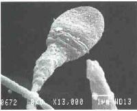 Sperm hücresinin mikroskobik görünümü