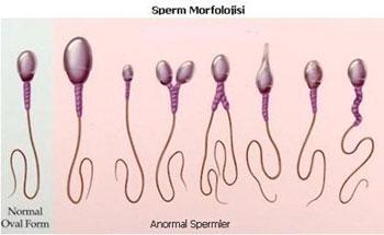 Sperm morfolojisi, yapı bozuklukları