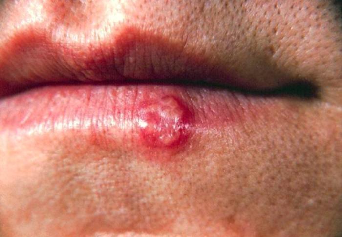 Ağızda uçuk, dudak uçuğu, herpes tip 1